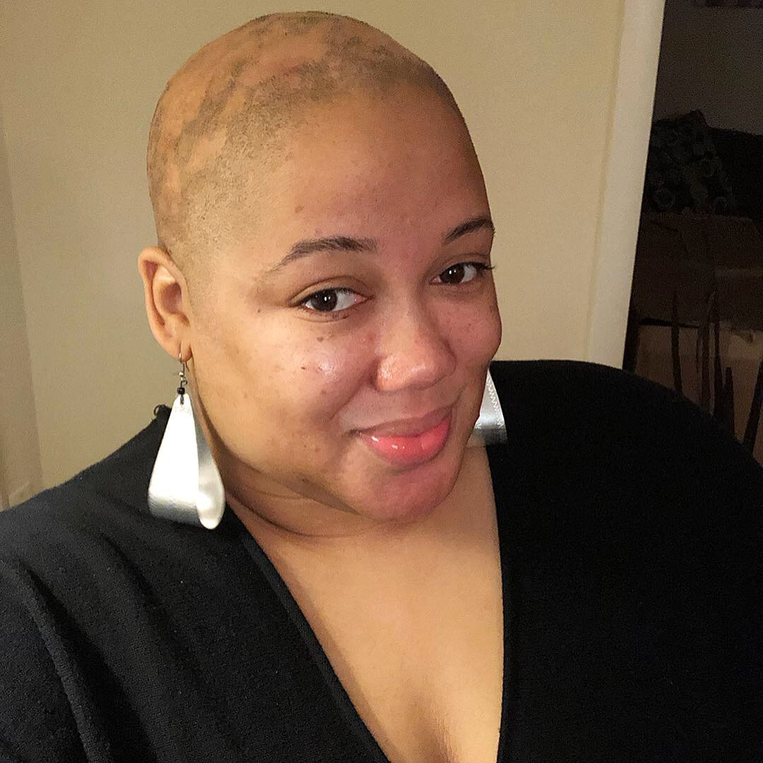 Life with Androgenetic Alopecia